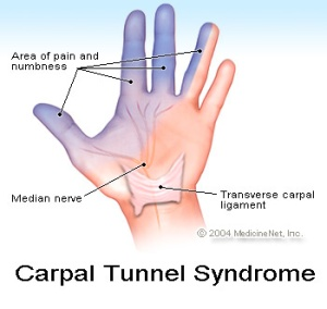 carpal_tunnel - PTHARLEM
